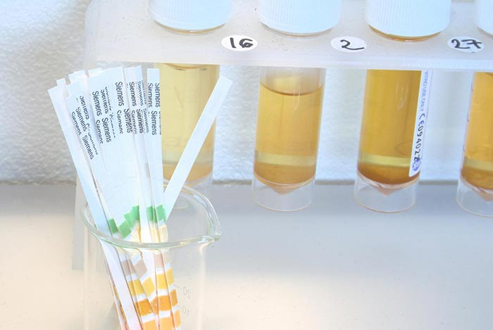Urine sampling may give you a slight glimmer of hope to beat a drug test, but it's very slim.